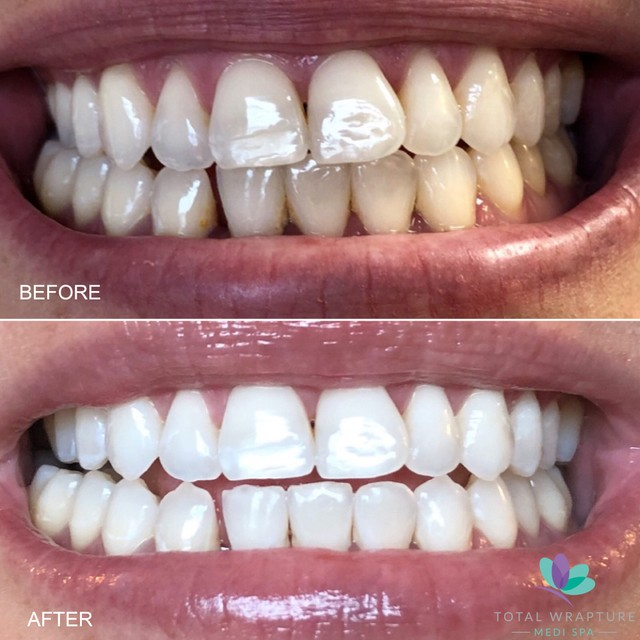 before and after comparison of teeth whitening service