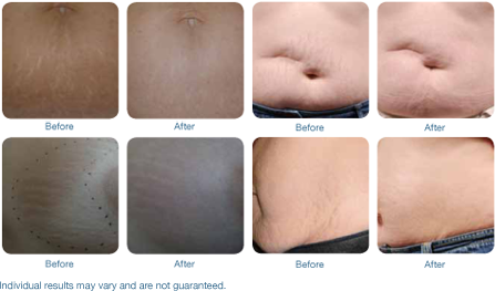 before and after comparison of stretch mark treatment