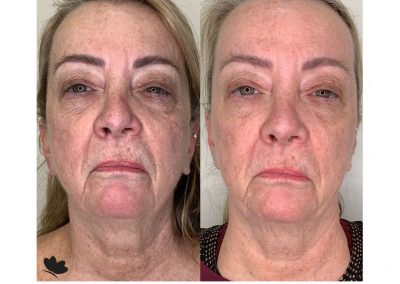 tempsure before and after treatment results